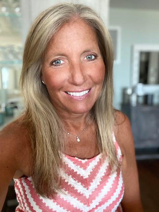 Dr Lisa Wiedeman carnivore keto diet doctor coach transformation meat heals shawn baker